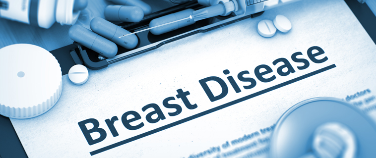What you should know about Fibrocystic Breast Disease