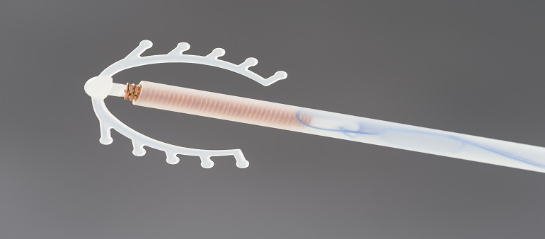 Top 4 Myths About IUD Fitting You Should About